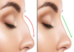 perth-non-surgical-rhinoplasty